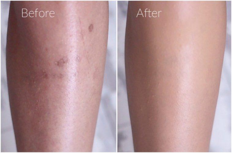piernas maquilladas antes y después